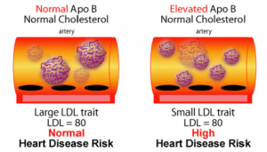 ldl-particle-size-and-heart-risk-300x171