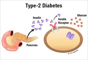 type_2_diabetes